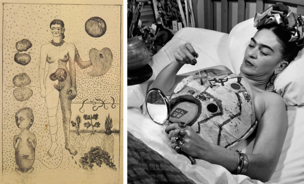 """Left, a drawing from 1932, """"The Abortion,"""" addresses Kahlo's inability to conceive children following the bus accident. Right, Kahlo decorates one of her many plaster corsets in 1951.Frida Kahlo Clothing"""