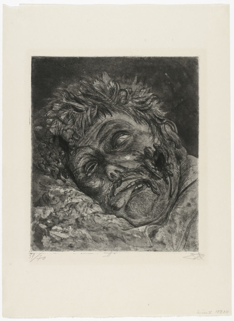 Dead Man (St. Clément), from The War, 1924, etching, aquatint, and drypoint from a portfolio of fifty etching, aquatint and drypoints,  etchings of Otto Dix© 2016 Artists Rights Society (ARS), New York / VG Bild-Kunst, Bonn.