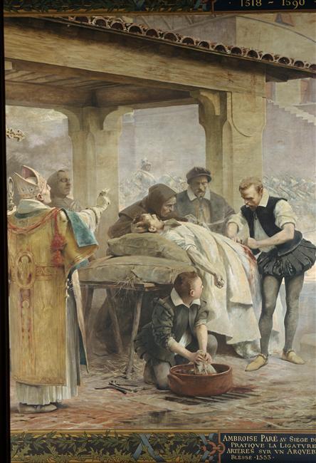 Théobald Chartran, Ambroise Paré au siège de Metz, pratique la ligature des artères sur un arquebusier blessé, late 19th century; Doctors in Paintings