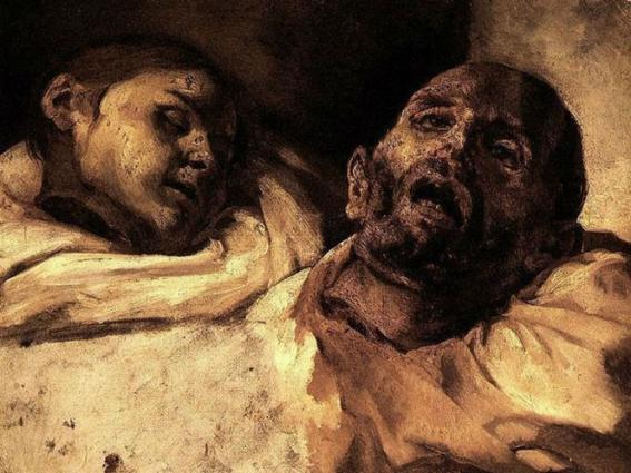 Théodore Géricault, The Severed Heads. On the left side is the female head which has closed eyes and bright white skin, while on the right is the male head with open mouth and open eyes which look at the viewer freely. Serrated, rough spots on the neck illustrate the cruel and torturous death these characters have agonized at the guillotine. Loose lines for the visualization of face and tissue contribute to the dramatic effect of the work.