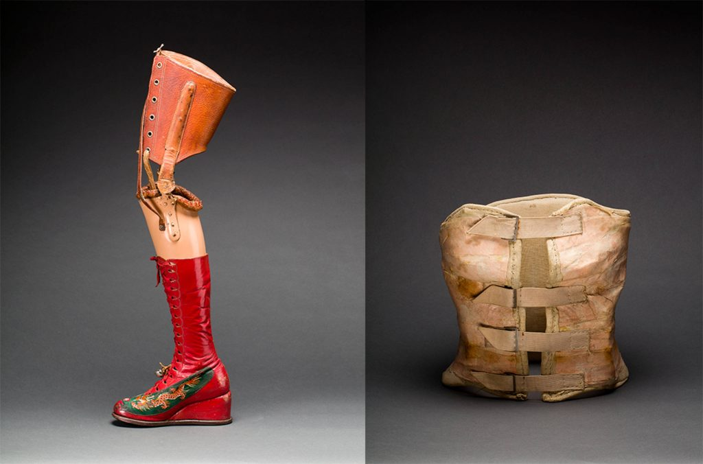 Left: Prosthetic leg with leather boot, 1953-4, Museo Frida Kahlo, Mexico City, Mexico. Photographs by Javier Hinojosa. Right: Plaster corset, c. 1954, Museo Frida Kahlo, Mexico City, Mexico. Photographs by Javier Hinojosa. Frida kahlo's style